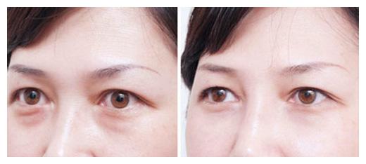 眼袋术前术后图