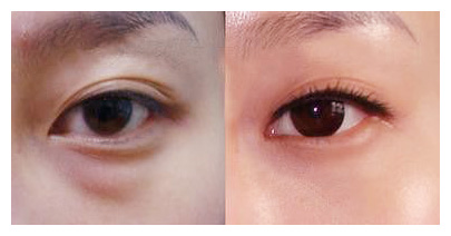 眼袋術前術后圖