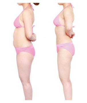 吸脂术前术后图