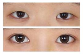 双眼皮术前术后图