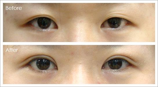 eye_back-1.jpg
