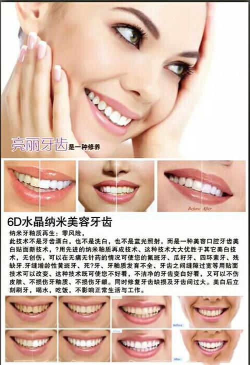6D纳米水晶美容牙齿.JPG