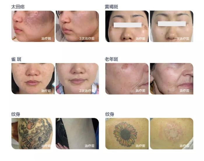 斑、痘痘、纹身治疗前后对比
