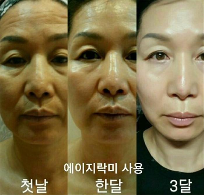 皮肤管理过程