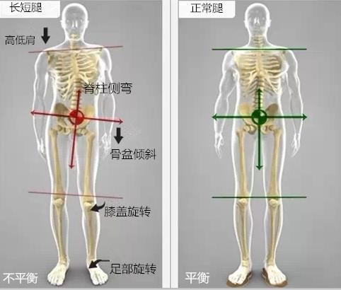 长短腿2.png